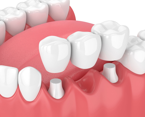 What Are Dental Bridges