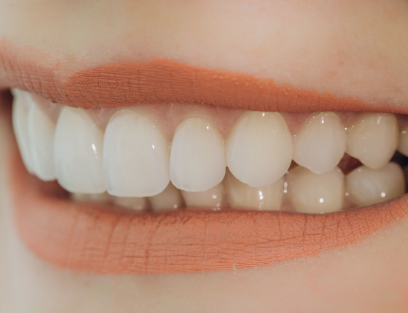 Good Candidate For Porcelain Veneers