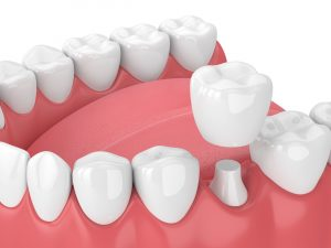 The Foleck Center Dental Crown Example