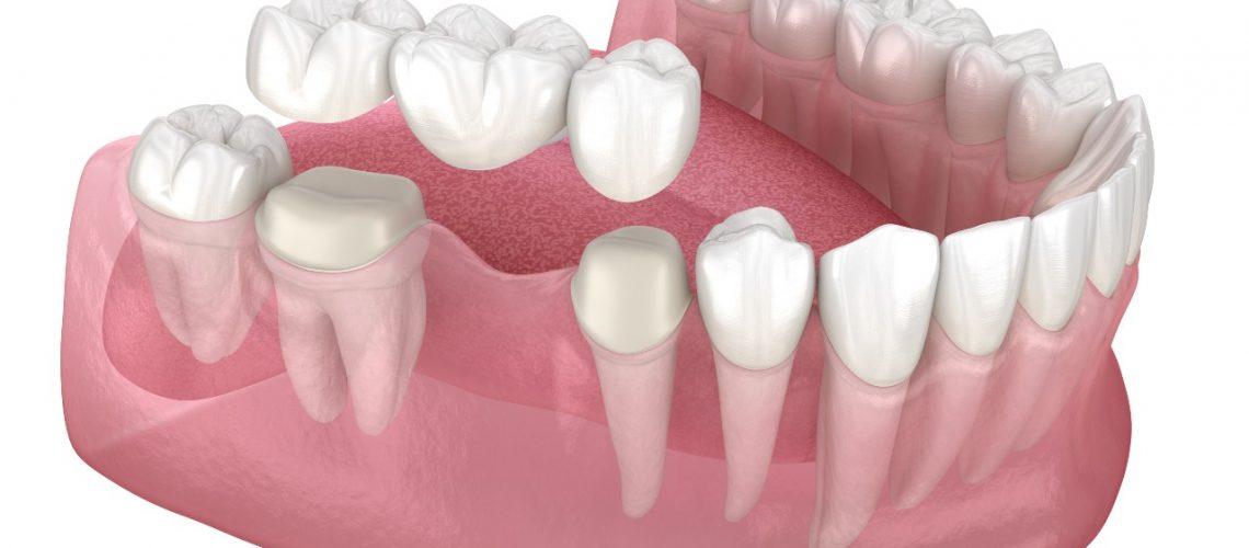 Gum Pain around a Dental Bridge